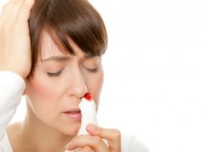 krwawienie z nosa, krew z nosa