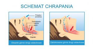 leczenie chrapania metodą Celon, leczenie chrapania metodą radiochirurgii