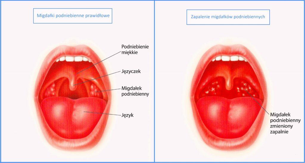 adenotomia
